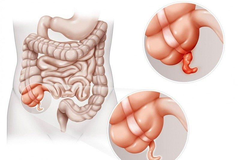 các triệu chứng đau ruột thừa là gì? - Ảnh 1