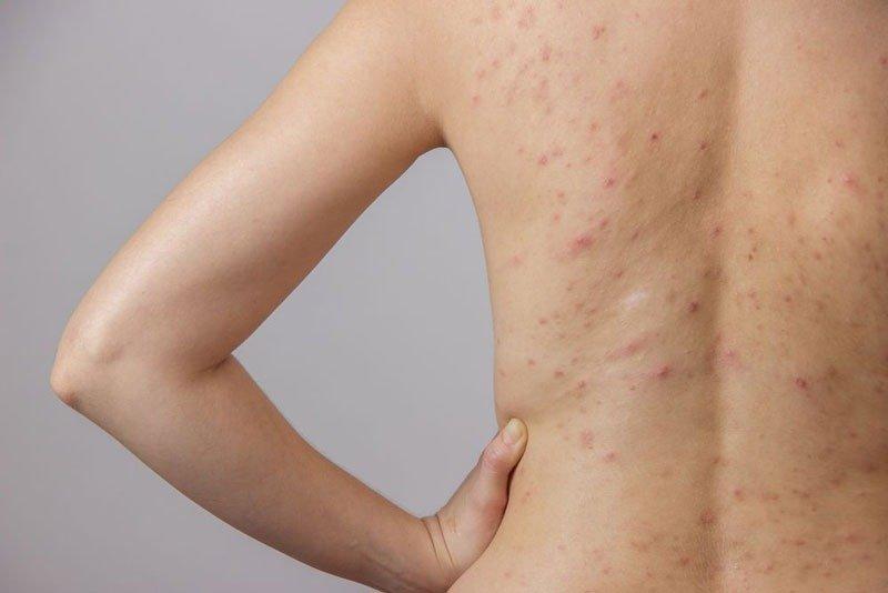 Viêm da là nhóm bệnh phổ biến nhất hiện nay - Ảnh 2