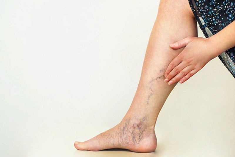 Tổng quan bệnh suy giãn tĩnh mạch chân - Ảnh 1