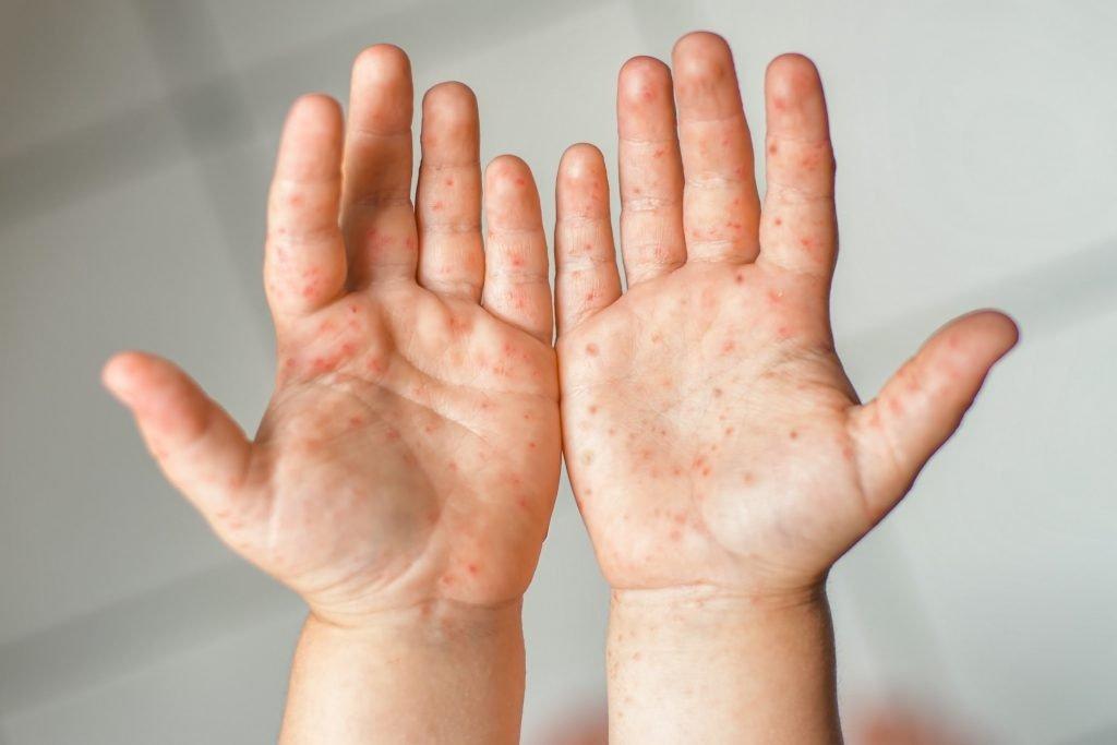 Bệnh chân tay miệng có lây qua nhiều đường khác nhau - Ảnh 6