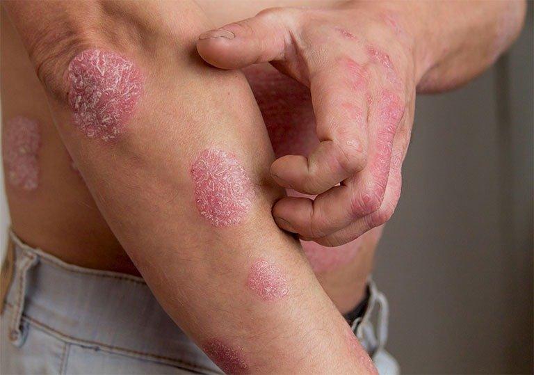 Các loại bệnh vảy nến thường gặp - Ảnh 2