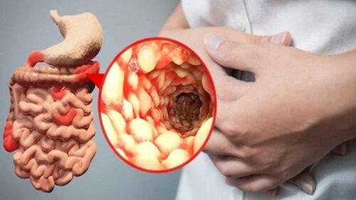 Bệnh viêm ruột (IBD) - Ảnh 5