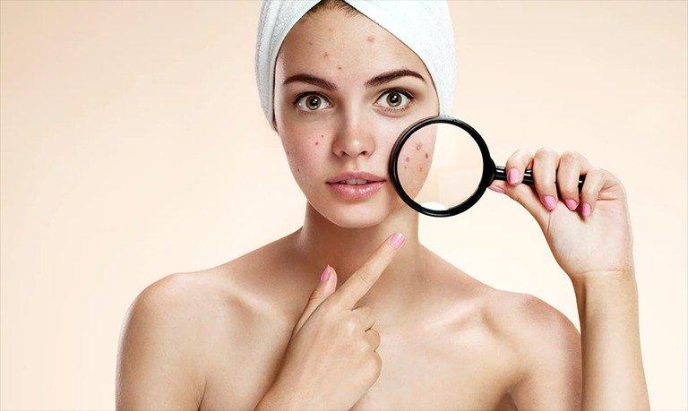 Nên lựa chọn sản phẩm phù hợp với làn da của bạn - Ảnh 4