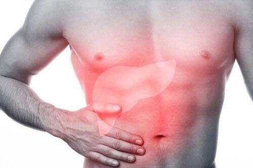 Nguyên nhân đau bụng dưới bên phải ở nam giới - Ảnh 3