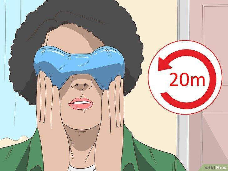 Tiêu đề ảnh Comfort a Sore and Itchy Eye Step 1