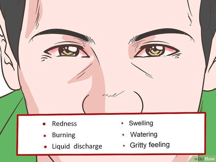 Tiêu đề ảnh Comfort a Sore and Itchy Eye Step 8
