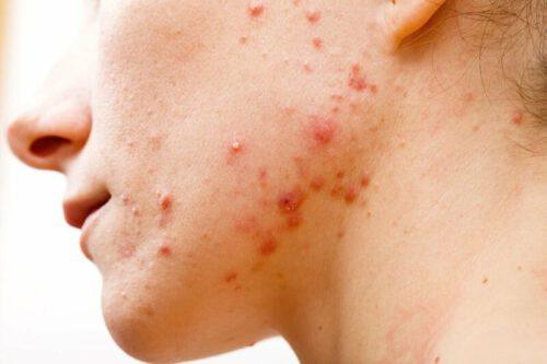 Viêm nang lông là bệnh gì? - Ảnh 2